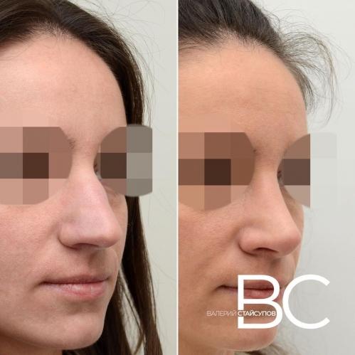 Фото пациентки до и после закрытой ринопластики у доктора Стайсупова