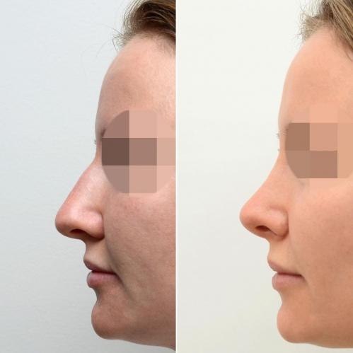 Фото пациентки до и после закрытой ринопластики у доктора Валерия Стайсупова