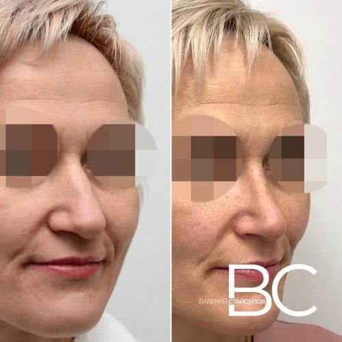 Фото пациентки до и после закрытой ринопластики у хирурга Валерия Стайсупова