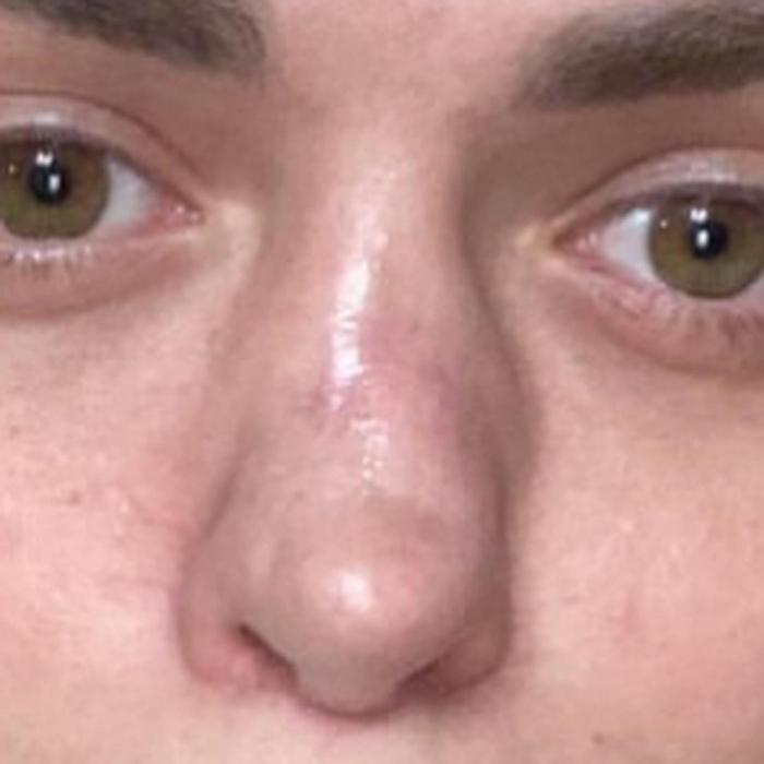 Анастасии Балинской испортили нос после ринопластики