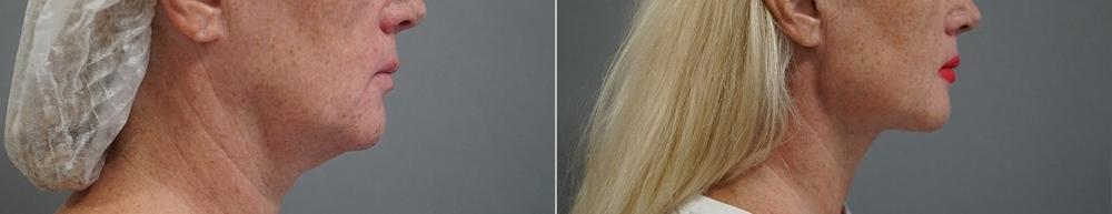 Пациентка доктора Пенаева до и после М2Л2