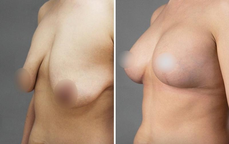 Пациентка доктора Четвериковой до и после подтяжки груди на имплантах