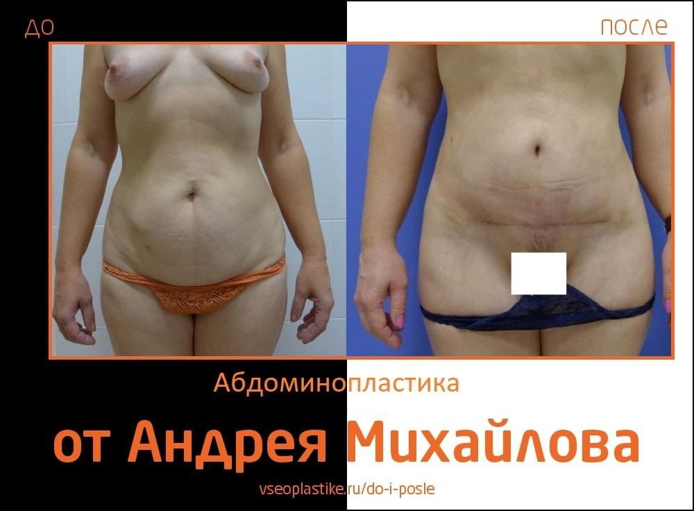 Фото до и после абдоминопластики у доктора Михайлова