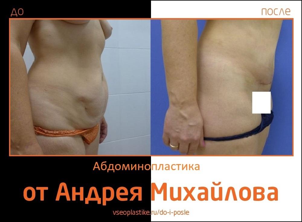 Андрей Михайлов. Фото до и после абдоминопластики