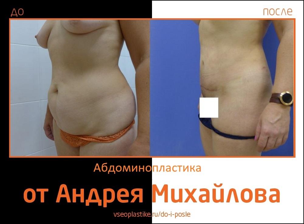 Фото пациентки до и после абдоминопластики у доктора Михайлова
