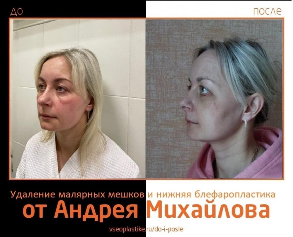 Фото до и после удаления малярных мешков и пластики век у доктора Андрея Михайлова