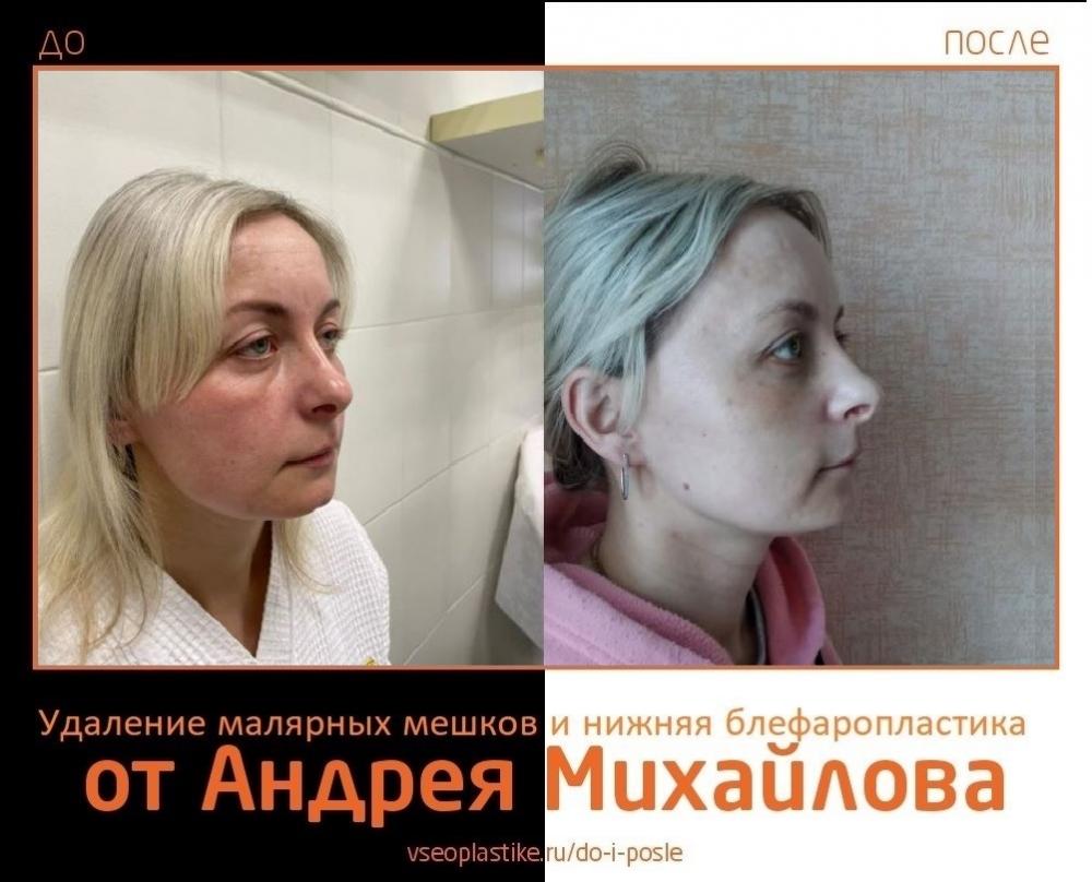 Андрей Михайлов. Фото до и после удаления малярных мешков и пластики век
