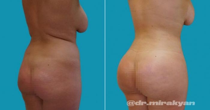 Пациентка доктора Гукаса Миракяна до и после липофилинга груди