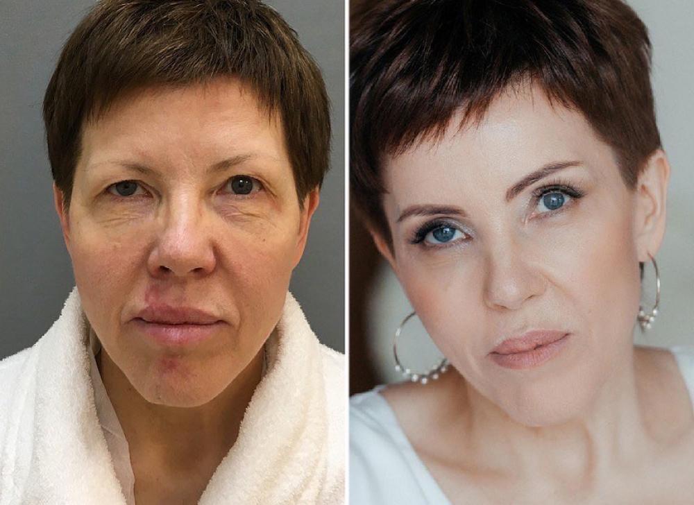 подтяжка лица Марина Четверикова