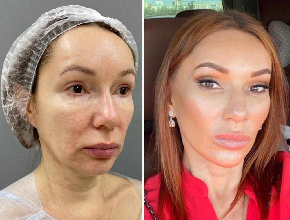 Марина Четверикова комплексное омоложение лица