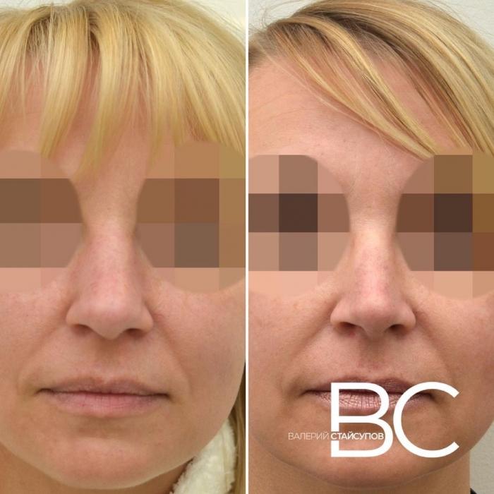 Пациентка доктора Валерия Стайсупова до и после закрытой ринопластики