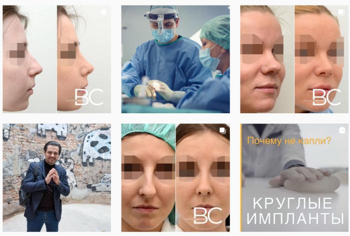 Скриншот ленты Инстаграма доктора Валерия Стайсупова