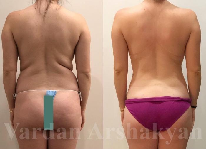 Пациентка доктора Аршакяна до и после комплексного скульптурирования тела