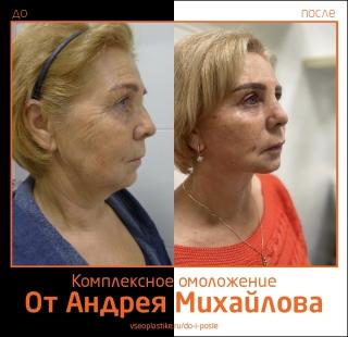 Пациентка доктора Михайлова до и после комплексного омоложения лица